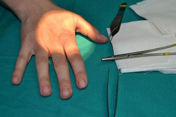 chirurgia-della-mano-centro-polispecialistico-diamedica-milano