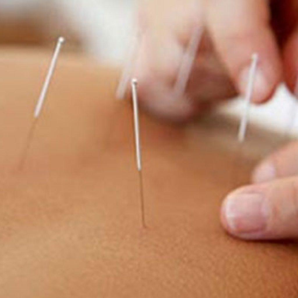 curare-con-agopuntura