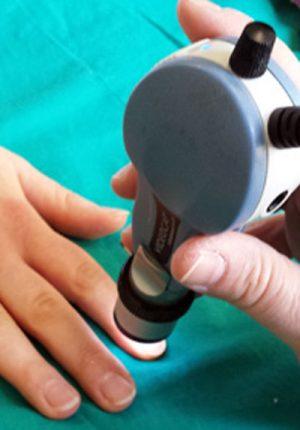 esame-videocapillaroscopia-diamedica