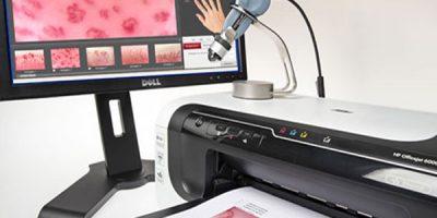 esame-videocapillaroscopia-milano