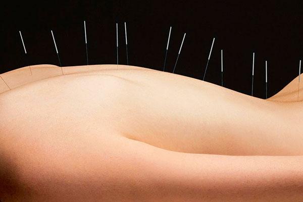 eduta-agopuntura-a-milano
