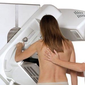 mammomagrafia-diamedica-milano